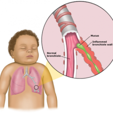 Dr. Mary Ann discusses RSV