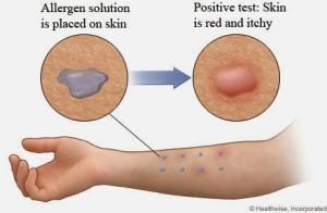 skin test allergies